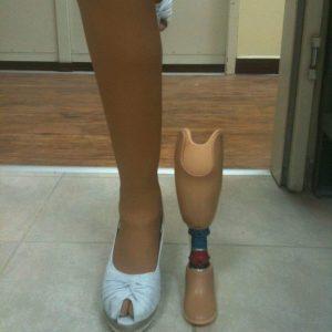 תותבת רגל לתינוק